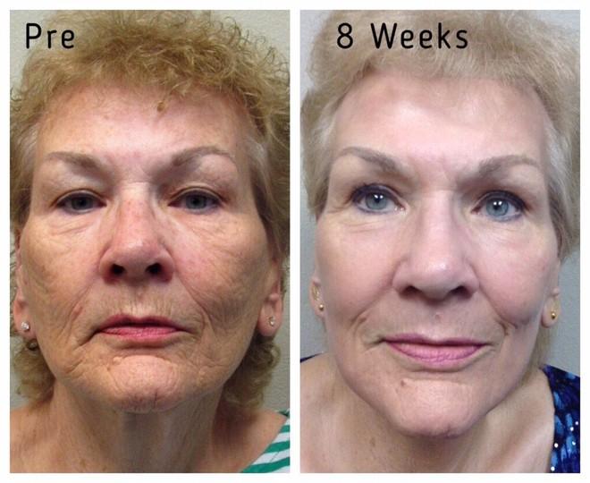 J-Plasma - Thêm một phương pháp làm trẻ hóa da thần kì hơn cả Botox và Laser - Ảnh 11.