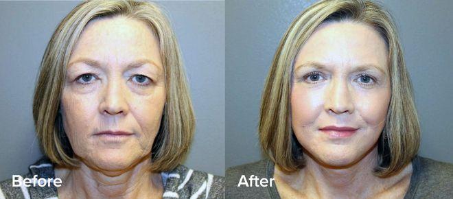 J-Plasma - Thêm một phương pháp làm trẻ hóa da thần kì hơn cả Botox và Laser - Ảnh 12.