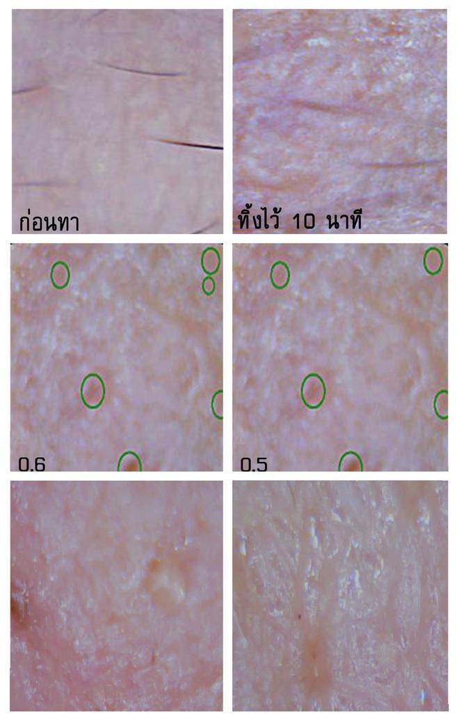 Soi đến tận chân tơ xem hiệu quả của 8 sản phẩm chống lão hóa phổ biến hiện nay - Ảnh 14.