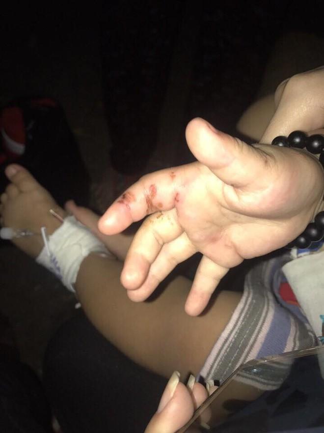Bình Dương: Người mẹ trẻ tiếp tay cho chồng hờ, bạo hành con trai 2 tuổi phải nhập viện cấp cứu? 2
