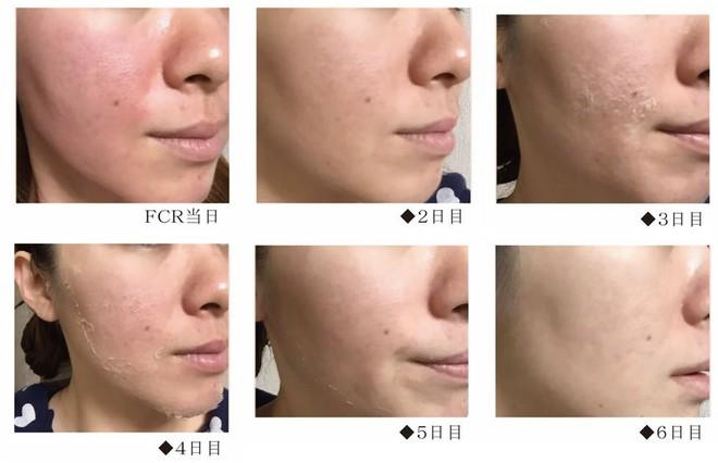 Giải đáp về FCR: phương pháp trị mụn, mờ thâm và thu nhỏ lỗ chân lông còn hiệu quả hơn cả lăn kim hay laser - Ảnh 19.