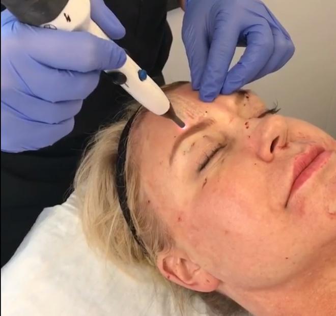 J-Plasma - Thêm một phương pháp làm trẻ hóa da thần kì hơn cả Botox và Laser - Ảnh 2.