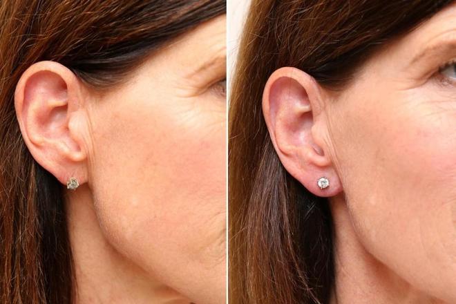 Hết tiêm căng da mặt, chị em còn tiêm filler vào thùy tai để loại bỏ tình trạng chảy xệ của lỗ bấm khuyên - Ảnh 1.