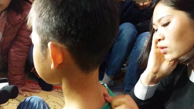 Vụ bé trai trai bị bạo hành ở Đông Anh: Ở trường cháu là học sinh nghịch ngợm - Ảnh 1.