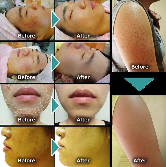 Giải đáp về FCR: phương pháp trị mụn, mờ thâm và thu nhỏ lỗ chân lông còn hiệu quả hơn cả lăn kim hay laser - Ảnh 21.