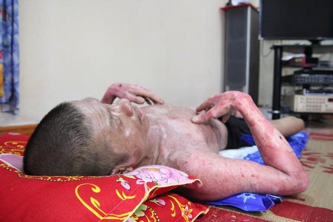 Bật đèn khi có mùi gas, 3 bác cháu bị bỏng nặng, gia đình phải trốn viện vì không có tiền điều trị - Ảnh 3.