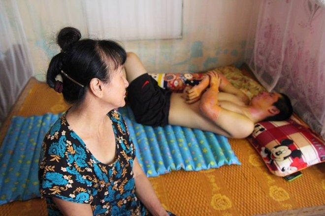 Bật đèn khi có mùi gas, 3 bác cháu bị bỏng nặng, gia đình phải trốn viện vì không có tiền điều trị - Ảnh 1.