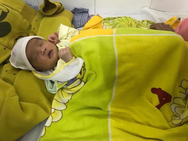 Bé gái 16 ngày tuổi loét thủng giác mạc hai mắt vì người nhà nhỏ sữa mẹ vào mắt - Ảnh 2.