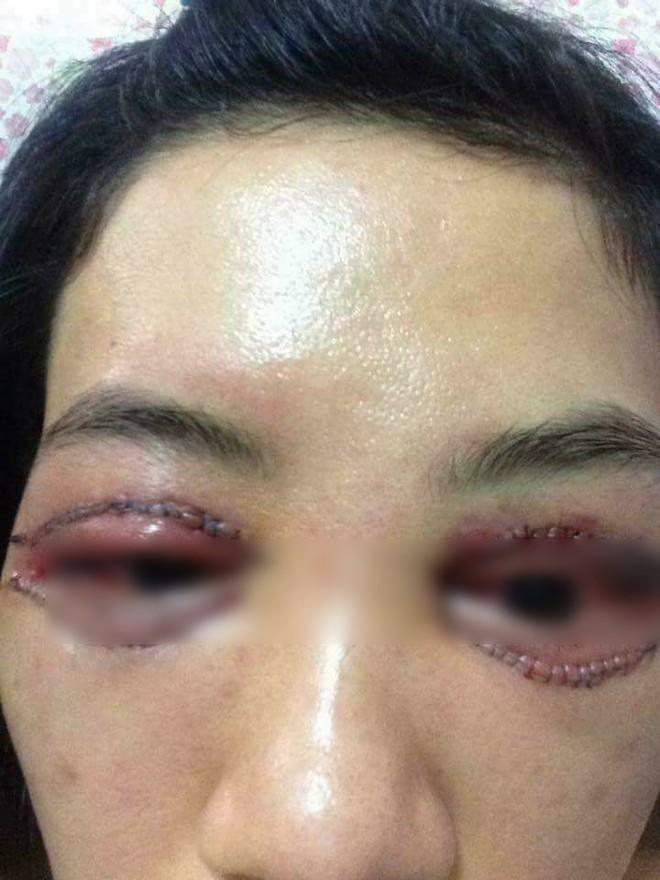 Là tiểu phẫu nhưng cắt mí hay bóc mỡ bọng mắt cũng có thể gây ra những hậu quả nhìn kinh khủng như thế này - Ảnh 7.