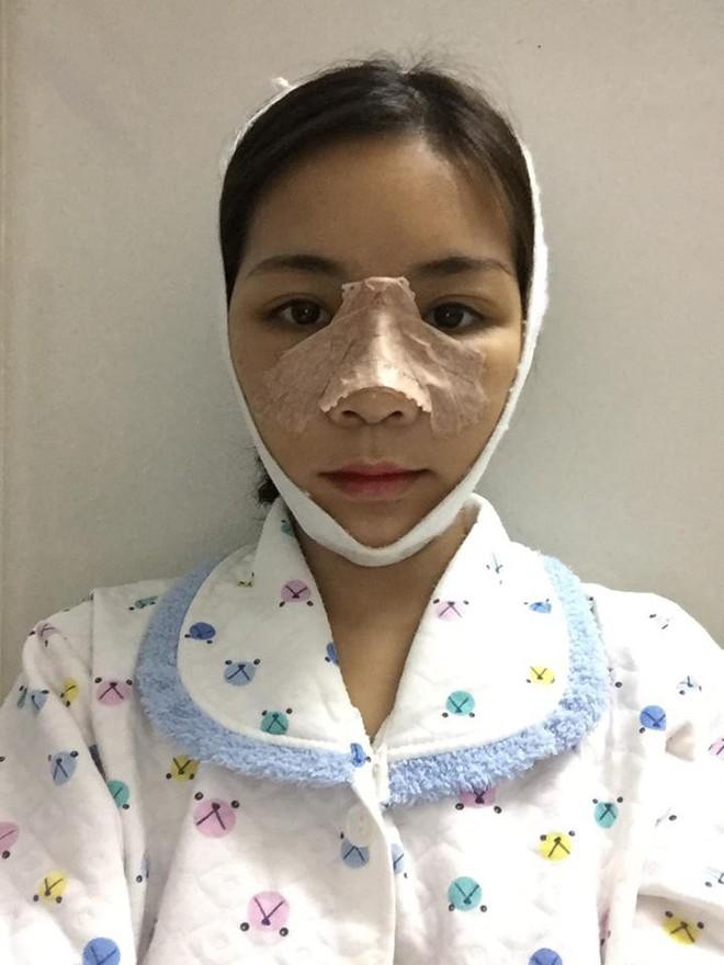 Bị tình địch chê xấu như vượn, cô gái đập mặt làm lại: Con em sau này mà xấu, em cũng cho đi phẫu thuật - Ảnh 6.