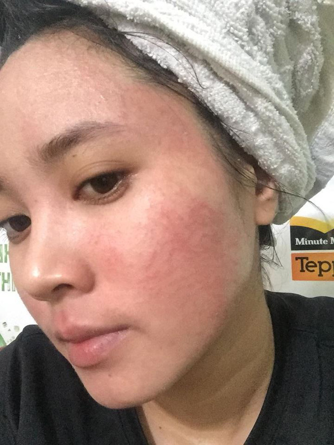 Dùng rượu thuốc bắc bong da tái tạo, cô gái trẻ bị nổi mẩn khắp mặt - Ảnh 1.