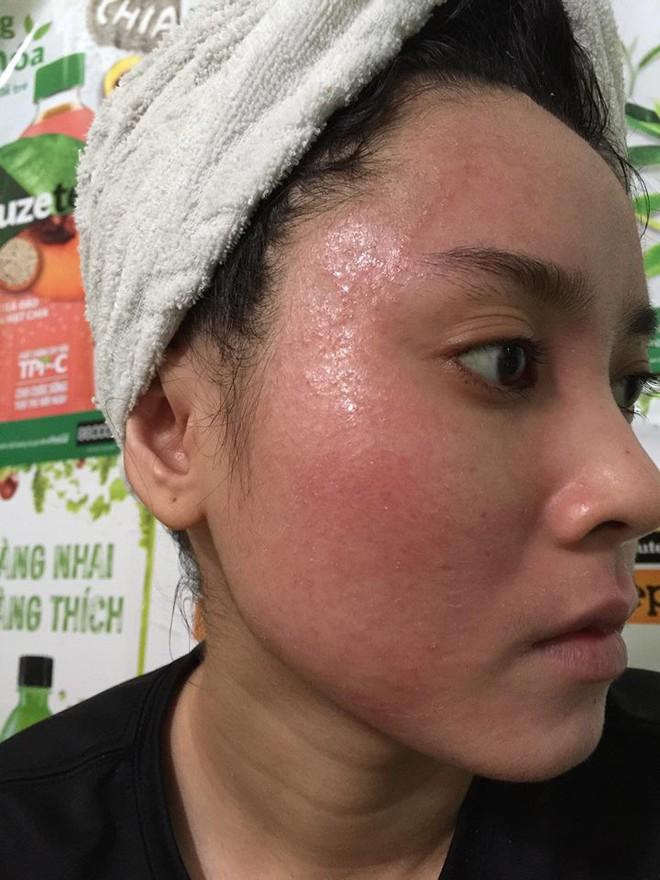 Dùng rượu thuốc bắc bong da tái tạo, cô gái trẻ bị nổi mẩn khắp mặt - Ảnh 3.