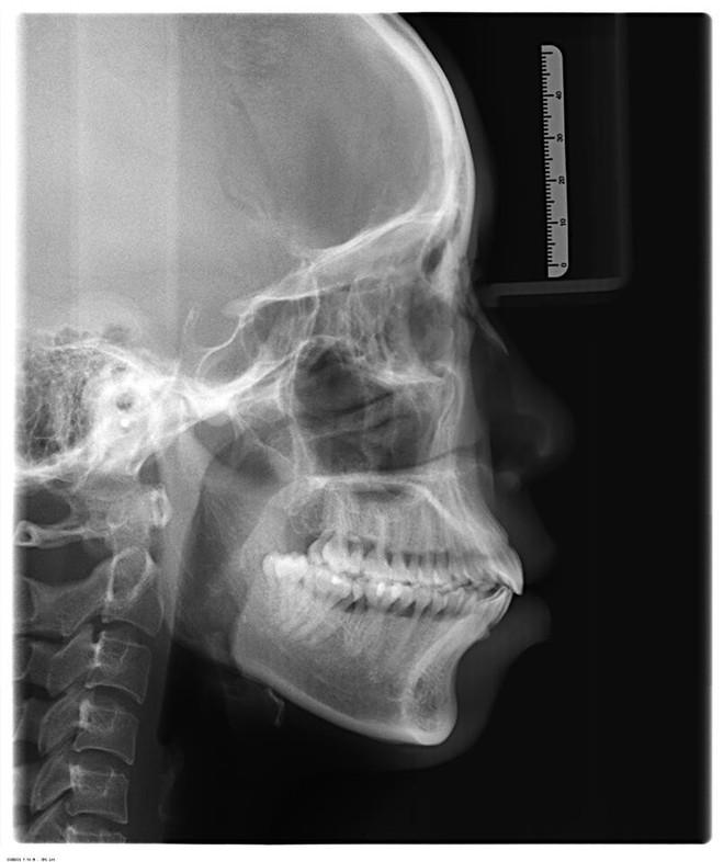 Bị tình địch chê xấu như vượn, cô gái đập mặt làm lại: Con em sau này mà xấu, em cũng cho đi phẫu thuật - Ảnh 4.