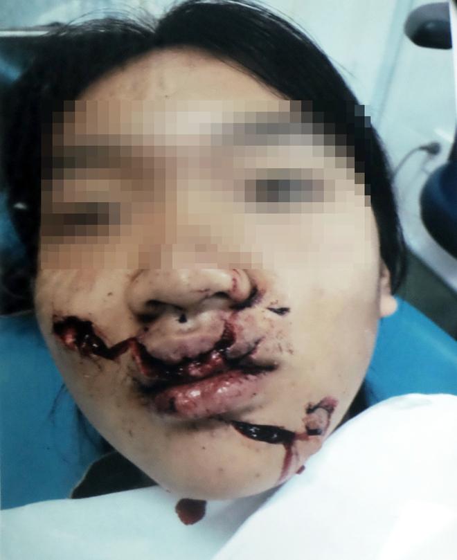 Choáng váng trong ngày hành kinh, bé gái 11 tuổi ngã vào kính trường học, khuôn mặt bị thương nặng nề - ảnh 2