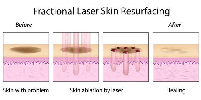 J-Plasma - Thêm một phương pháp làm trẻ hóa da thần kì hơn cả Botox và Laser - Ảnh 4.