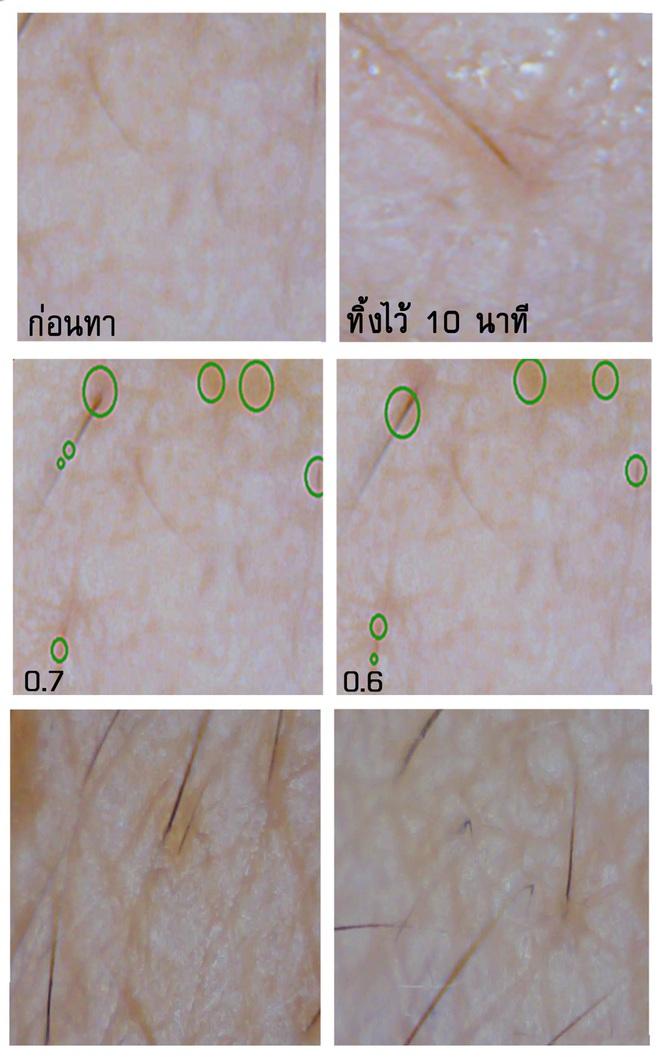 Soi đến tận chân tơ xem hiệu quả của 8 sản phẩm chống lão hóa phổ biến hiện nay - Ảnh 6.
