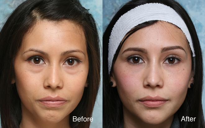 J-Plasma - Thêm một phương pháp làm trẻ hóa da thần kì hơn cả Botox và Laser - Ảnh 6.