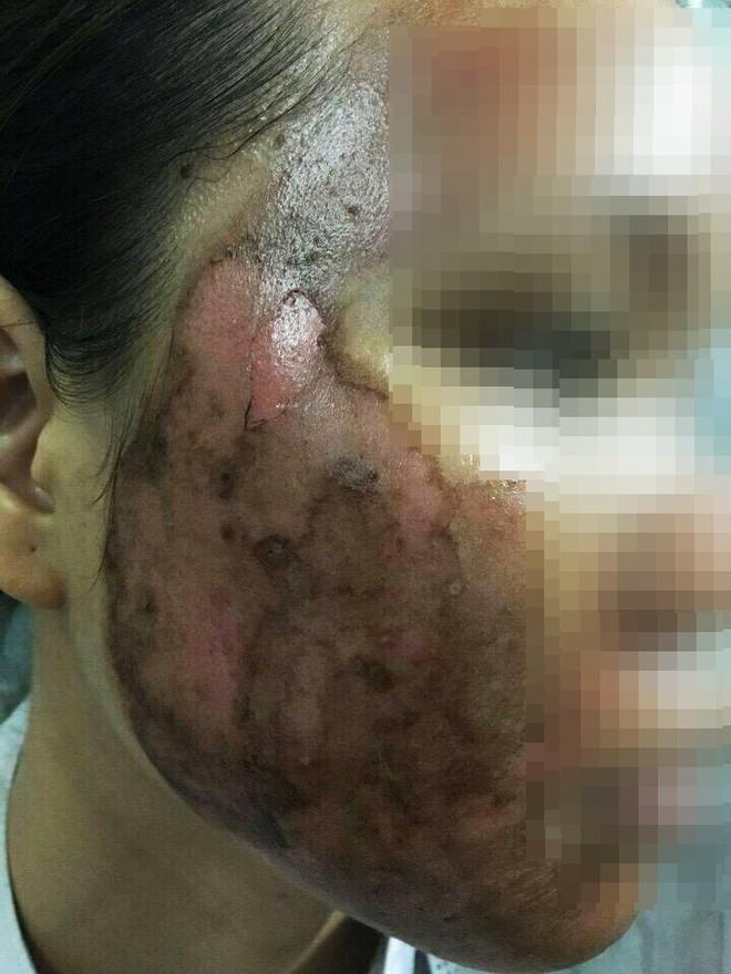"""Cô gái """"lột da Đông y"""" bị bỏng nặng và cuộc chiến giữa bác sĩ thẩm mỹ với kem trộn biến tướng - ảnh 1"""