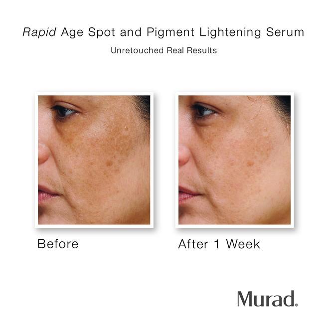 8 sản phẩm trị mụn và sẹo mụn mang lại hiệu quả cấp tốc cho làn da của bạn - Ảnh 11.