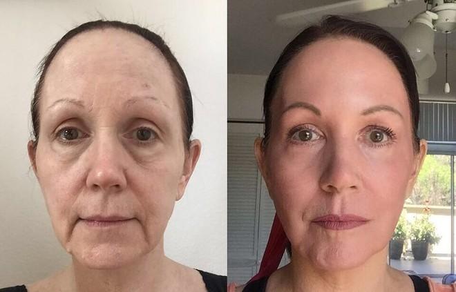 J-Plasma - Thêm một phương pháp làm trẻ hóa da thần kì hơn cả Botox và Laser - Ảnh 7.