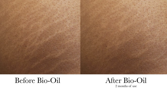 Nghe đồn thổi đã nhiều về loại dầu chống rạn da - Bio Oil , nhưng bạn đã biết phải sử dụng sao cho đúng - Ảnh 7.