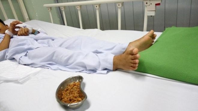 Hậu Giang: Con đau quặn bụng 4 ngày, mẹ tá hoả phát hiện hàng chục hạt sơ ri trong người bé trai 11 tuổi - Ảnh 1.