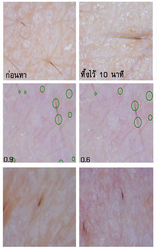 Soi đến tận chân tơ xem hiệu quả của 8 sản phẩm chống lão hóa phổ biến hiện nay - Ảnh 8.