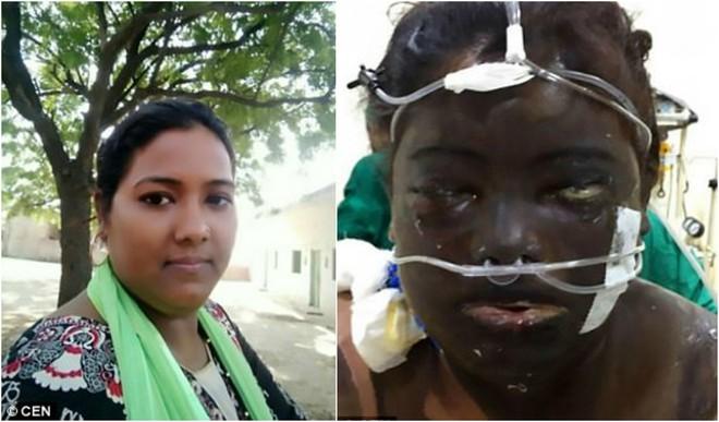 Vợ bị chồng tạt axit cháy xém mặt, mù mắt vì muốn tự đi làm kiếm tiền nuôi con - Ảnh 1.