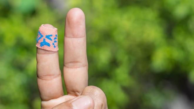 Những thay đổi nhỏ trên da tưởng bình thường nhưng cũng có thể là dấu hiệu cảnh báo bạn cần đi khám da liễu ngay - Ảnh 10.