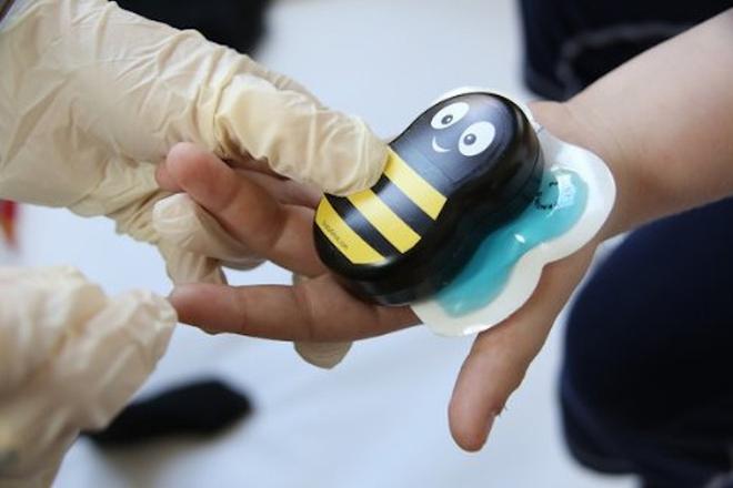 dụng cụ giảm đau thông minh chú ong Buzzy