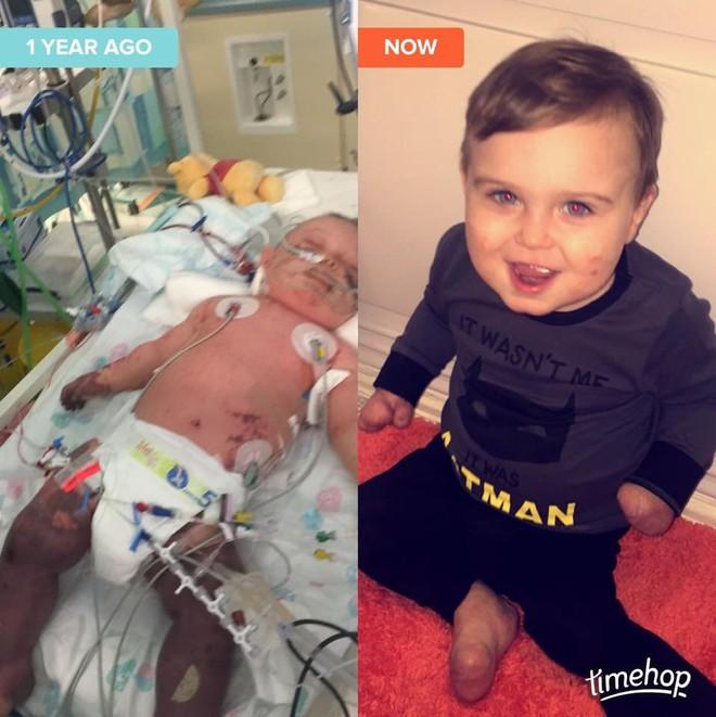 Viêm màng não đã khiến bé trai này chịu thương tổn thế nào, các cha mẹ cần biết - Ảnh 4.