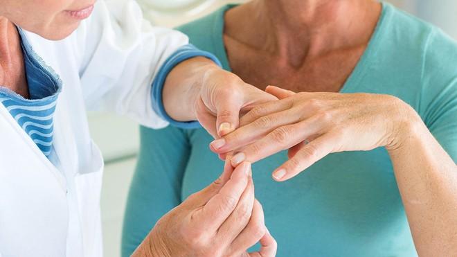Bệnh vẩy nến khiến không ít người khổ sở và đây là những điều cần biết để phòng tránh - Ảnh 2.