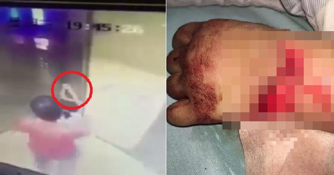 Bé gái bị thương nghiêm trọng khi đi thang máy bởi sai lầm cha mẹ hay gặp phải - Ảnh 2.