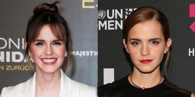 Minh chứng cho thấy, ngay cả các sao Hollywood cũng có người chỉ vì để tóc mái mà nhan sắc như tụt đi vài phần - Ảnh 5.
