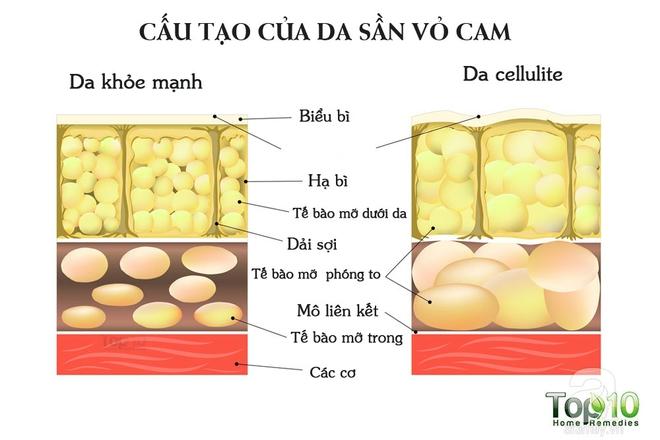 Nếu muốn da mịn màng, không bao giờ bị sần sùi như vỏ cam: Hãy áp dụng theo cách này - Ảnh 2.