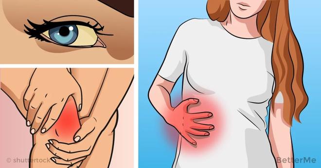 6 dấu hiệu cảnh báo gan của bạn có thể đang... bị hỏng - Ảnh 2.
