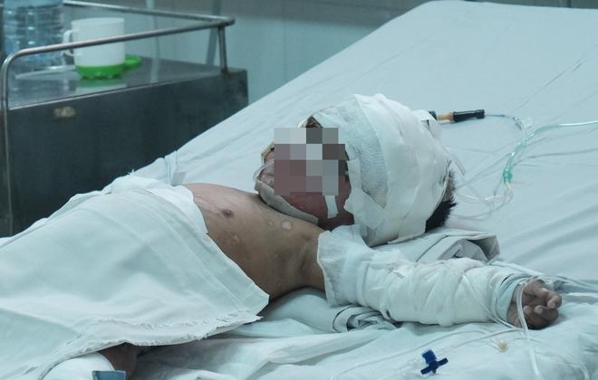 Bé trai bị bỏng sâu kèm thêm chứng bệnh viêm phổi.