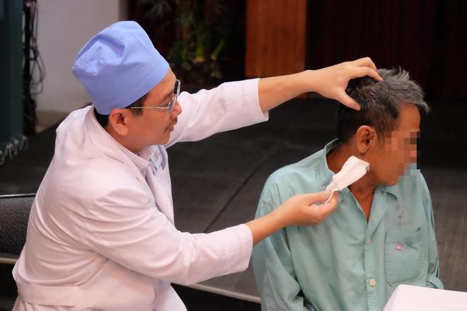 Bị cháu ngoại đụng trúng trong lúc ngoáy tai, đoạn tăm nhang ghim vào tai cụ ông suốt một năm - Ảnh 1.