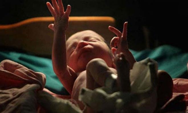 Em bé vừa chào đời, bác sĩ đặt vào túi nhựa trả về cho gia đình chôn cất thì điều ngạc nhiên xảy ra - Ảnh 2.