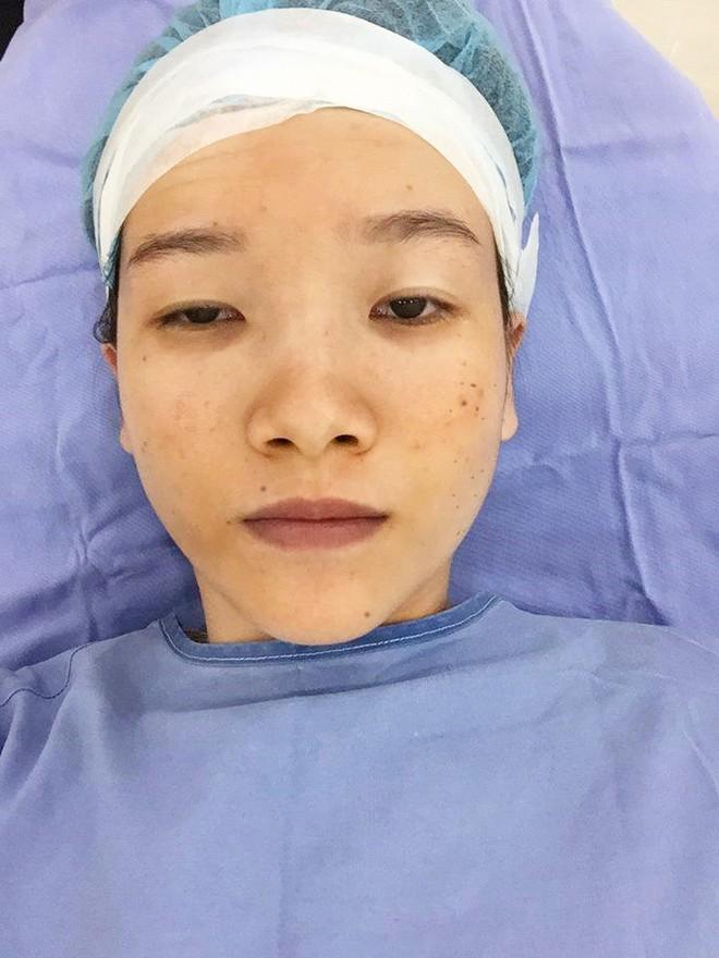 Cô gái mắt lươn từng bị ngăn cấm tình yêu, đuổi việc vì nhìn gian manh lột xác ngoạn mục sau phẫu thuật thẩm mỹ - Ảnh 4.