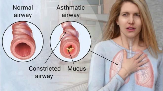 6 căn bệnh gây ra các cơn ho mãn tính - Ảnh 1.