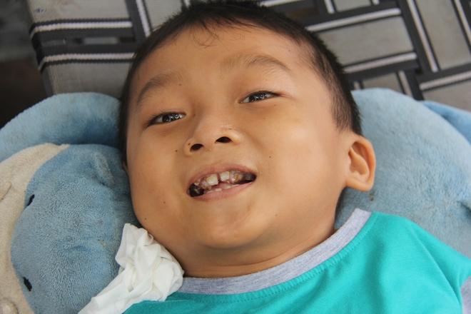 Mồ côi cha, đứa lớn bị bại não, đứa nhỏ đi không được, bám víu trên vai mẹ tật nguyền mưu sinh giữa Sài Gòn - Ảnh 7.