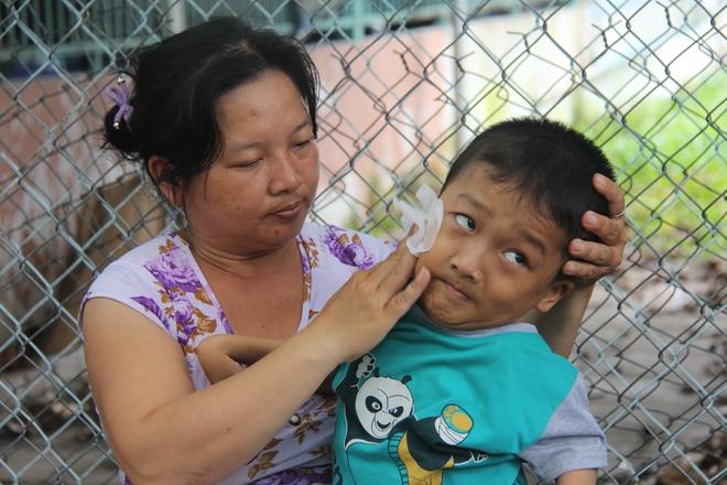 Mồ côi cha, đứa lớn bị bại não, đứa nhỏ đi không được, bám víu trên vai mẹ tật nguyền mưu sinh giữa Sài Gòn - Ảnh 9.