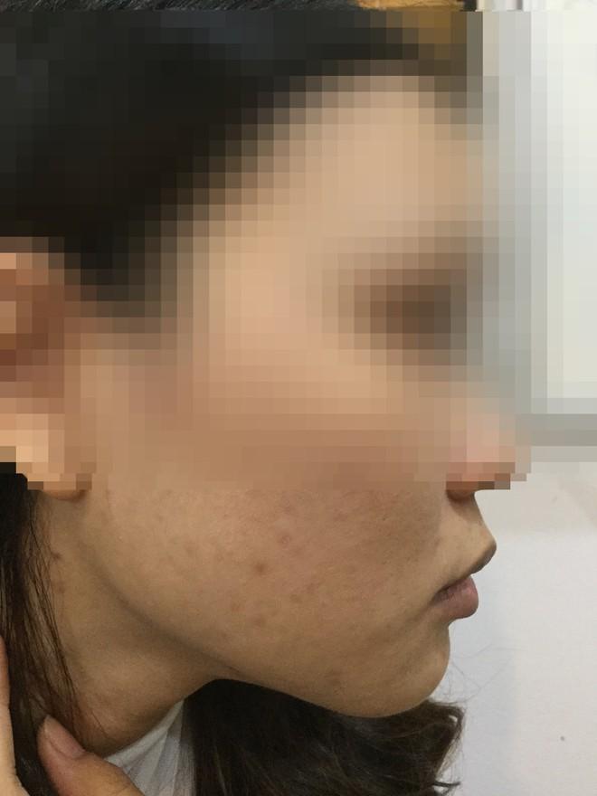 """Cô gái """"lột da Đông y"""" bị bỏng nặng và cuộc chiến giữa bác sĩ thẩm mỹ với kem trộn biến tướng - ảnh 6"""