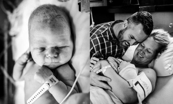 Kinh ngạc trước hình ảnh bé sơ sinh có đầu dài bất thường khi chào đời - Ảnh 3.