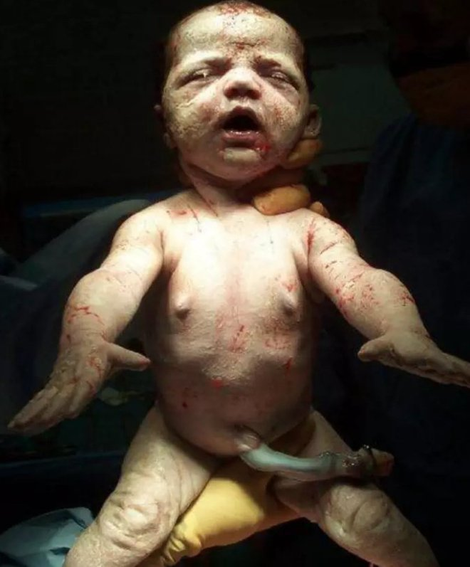 Khoảnh khắc những em bé chào đời chạm tới trái tim hàng triệu người - Ảnh 2.