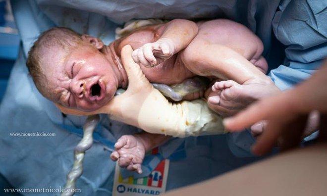 Những bức ảnh tuyệt đẹp về dây rốn - Sợi dây kết nối mẹ và con suốt 9 tháng 10 ngày - Ảnh 5.