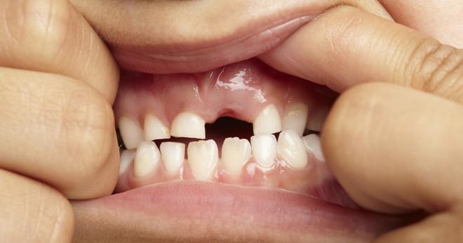 Báo động: Nhiều trẻ em bị sâu răng vì ăn quá nhiều thực phẩm có đường - Ảnh 1.