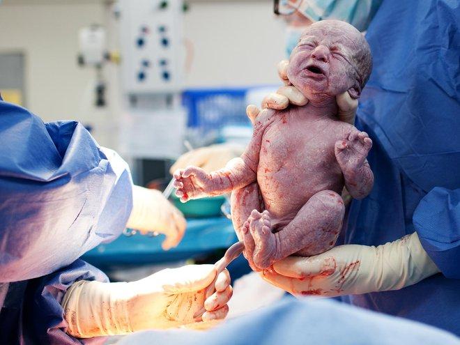 Tường tận ba giai đoạn của quá trình sinh nở tự nhiên mẹ bầu cần biết - Ảnh 2.