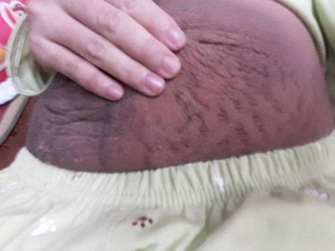 Bà mẹ 24 tuổi chia sẻ vết tích bụng rạn 13 ngày sau sinh nhìn đến xót xa - Ảnh 2.